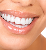 Teeth Whitening Services Sioux Falls, SD